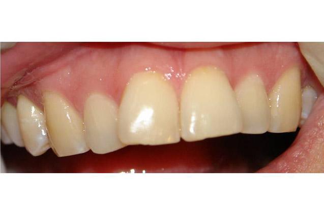 Odonto merida clinica dental - Clinica dental caser ...